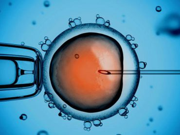 In Vitro Fertilization – IVF